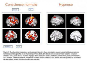 hypnose IRM